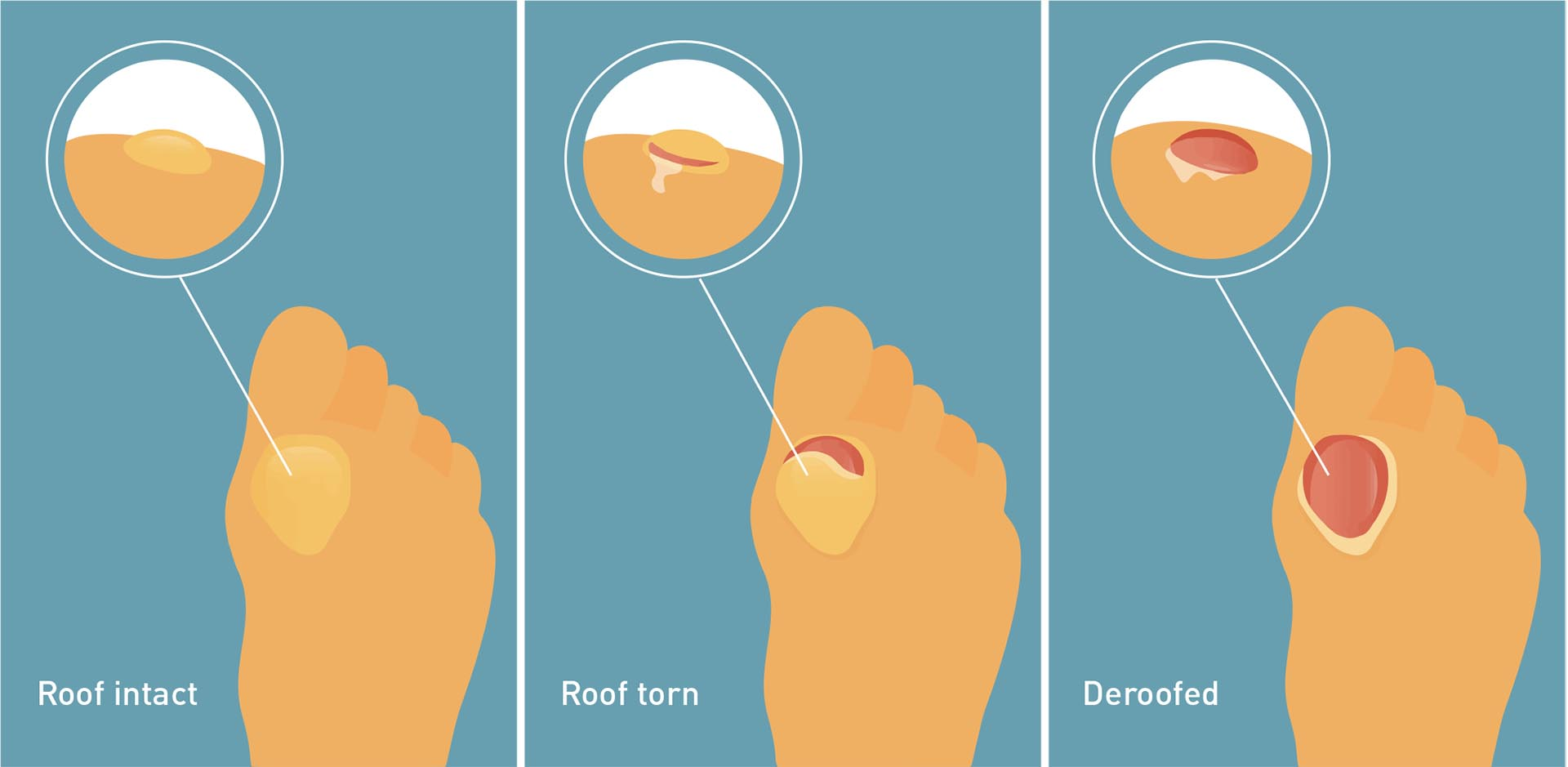 How To Treat Blisters The Right Way Live Better