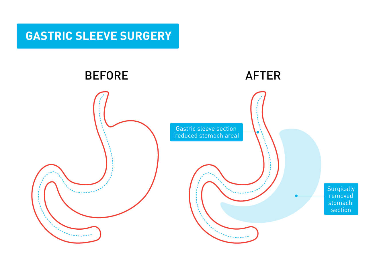 A graphic showing the difference between a stomach before and after gastric sleeve surgery