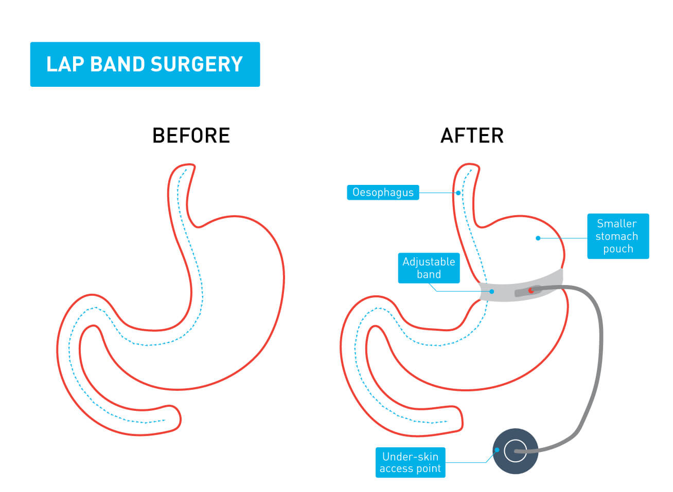 A graphic showing the difference between a stomach before and after lap band surgery